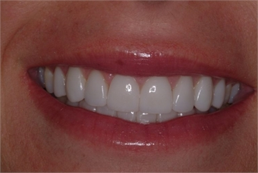DENTAL BONDING AND COMPOSITE VENEERS IS THE BEST OPTION FOR YOUR DENTAL HEALTH