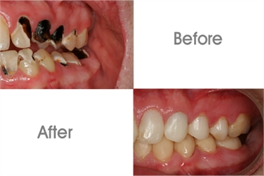 Dental Care Before And After