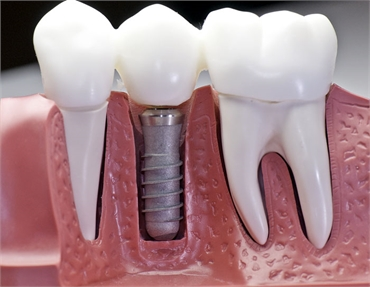 Why A Dental Implant May Be The Best Way To Preserve Your Smile