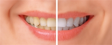 Teeth Whitening Options for Sensitive Teeth