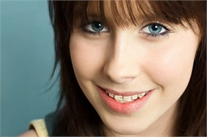 Preventing Cavities While Wearing Braces