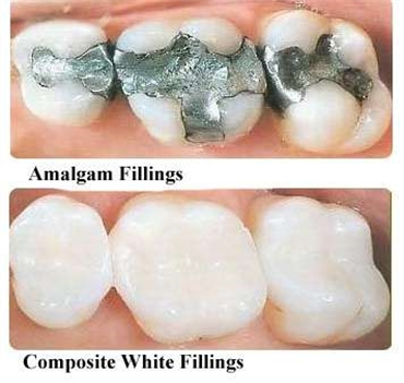 Mercury Is This Heavy Metal and A Poison. Should We Still Be Using Mercury Fillings