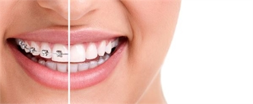 10 Reasons Why Invisalign is the right choice