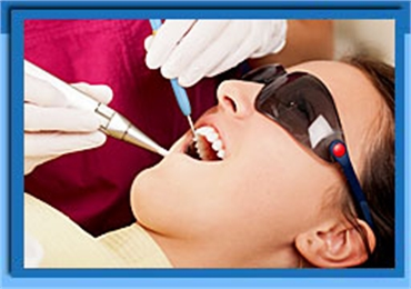 Root Canal Laser Treatment