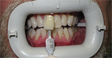 Whitening After 703 753 8600 Dentist Gainesville VA