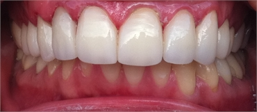 Aligned Teeth After Retracted 703 753 8600 Dentist Gainesville VA