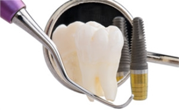 Affordable Dental Implants Melbourne