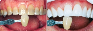 Preventive Dental Care And How It Can Benefit You