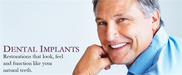 Dnetal Implants specialists Holladay Dental Excellence